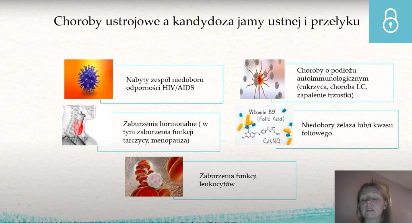 Leczenie kandydozy jamy ustnej. Uprawnienia farmaceuty – RECEPTA FARMACEUTYCZNA